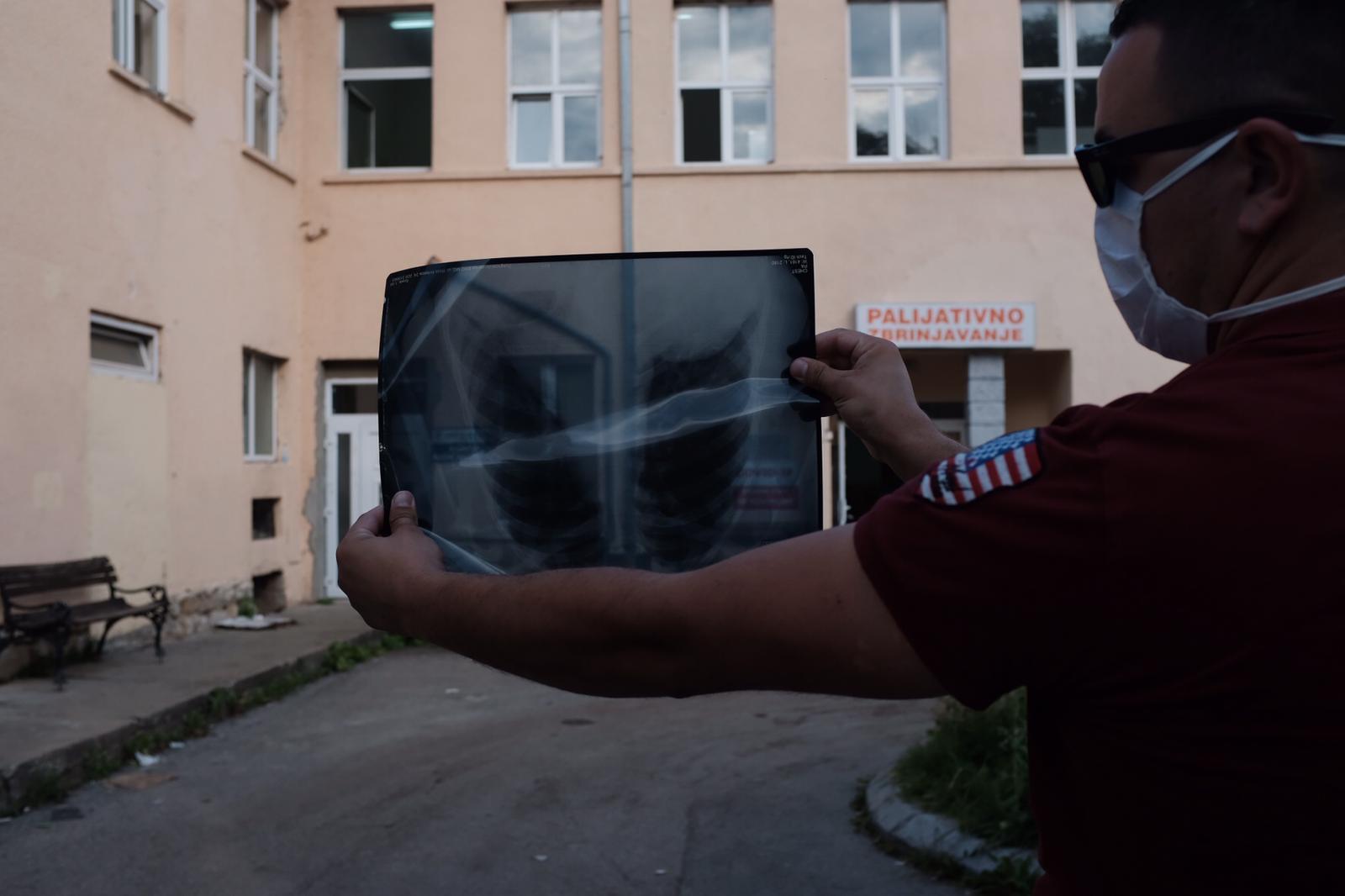 u-srbiji-porastao-broj-novoobolelih,-jedna-osoba-preminula