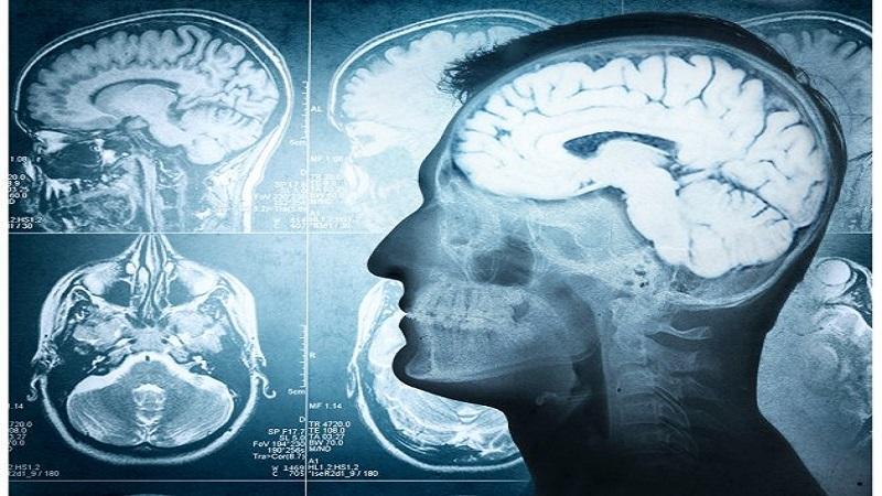 novi-lek-za-alchajmerovu-bolest:-vrata-nade-otvorena,-ali-uz-oprez