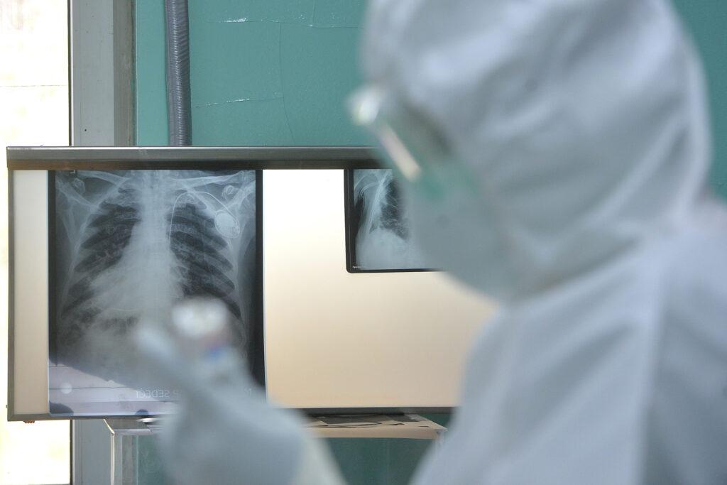 u-srbiji-jos-osam-osoba-umrlo-od-posledica-korona-virusa,-124-novozarazena